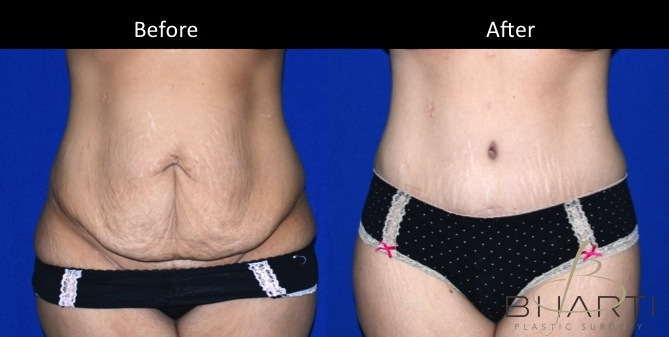 Case Study Full Abdominoplasty Tummy Tuck Plastic Surgery Blog